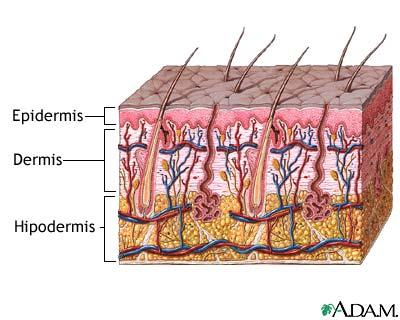 dermis y epidermis